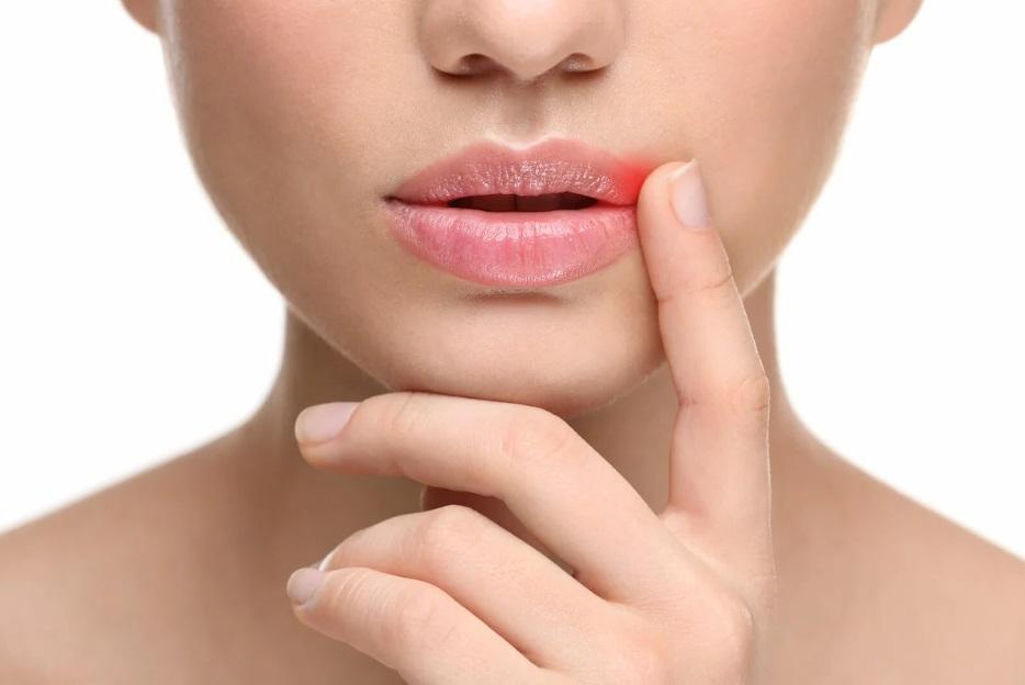 лекарства от герпеса на губах
